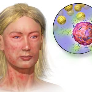 Мастоцитоз: особенности симптомов и лечения заболевания