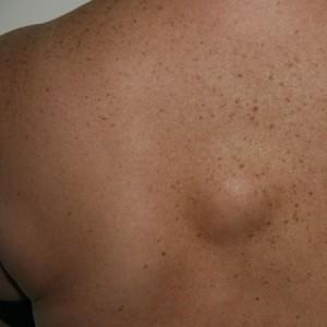 Жировики на теле: причины появления липом и атером