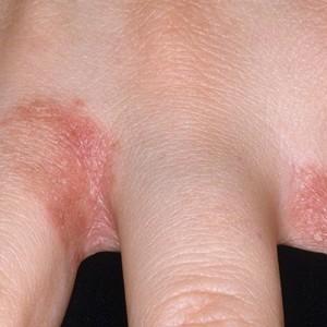 Покраснение и шелушение между пальцами рук: причины