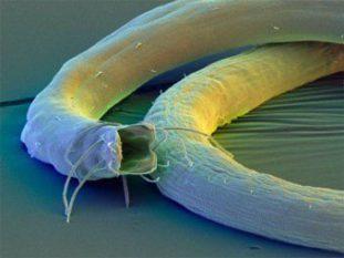 Как устранить симптомы аскаридоза и вывести этих паразитов у ребенка?