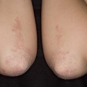Шелушение кожи на локтях причины
