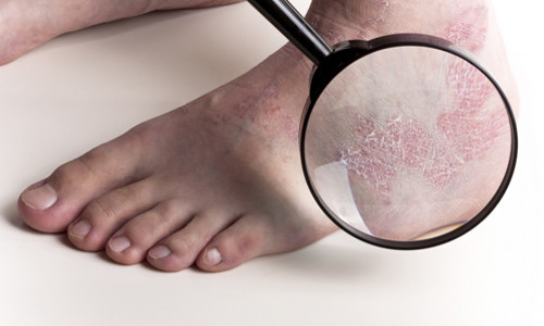 Особенности лечения экземы на ногах