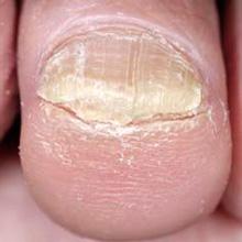 Появление лишая на коже: причины, лечение и профилактика