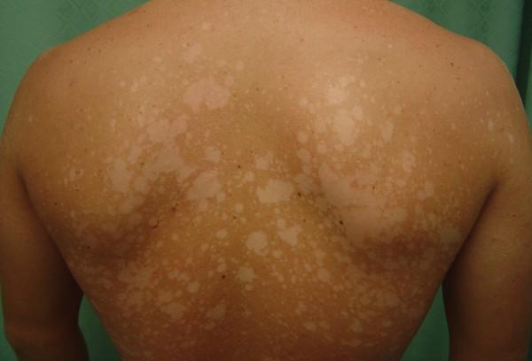 Белый лишай клинические особенности заболевания