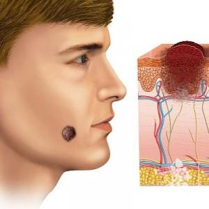 Какие бывают виды меланомы и как они проявляются
