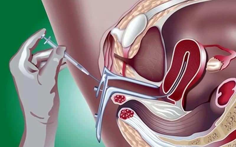Беременность после искусственной внутриматочной инсеминации спермой