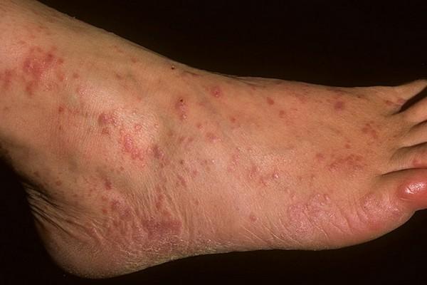 Симптомы, фото и лечение красного лишая у человека