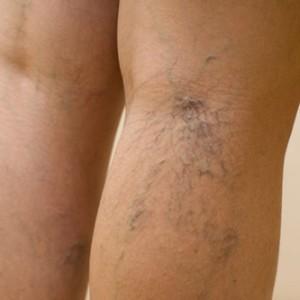 Клинические особенности венозного дерматита и подходы к его лечению