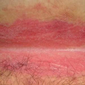 Как вылечить паховый дерматит?
