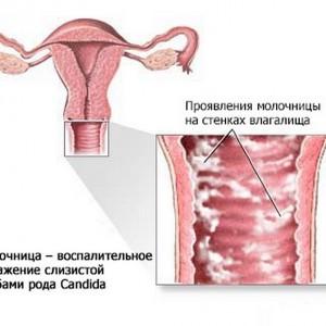 Кандидоз у женщин: фото, симптоматика и лечение