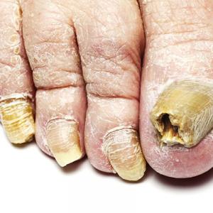 Грибок стопы: симптомы заболевания и лечение народными средствами