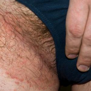 Зуд в паху: причины, последствия и лечение