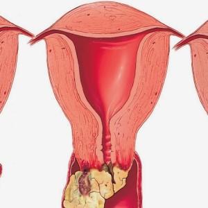 Папилломавирусная инфекция у женщин, фото