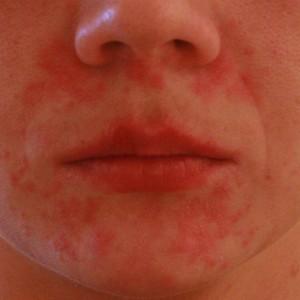 Симптомы и лечение аллергического дерматита у взрослых