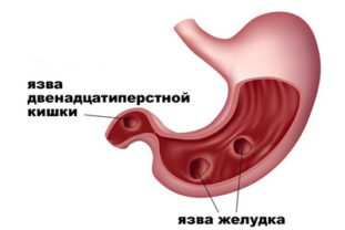 Народные рецепты для очищения кровеносных сосудов от холестерина