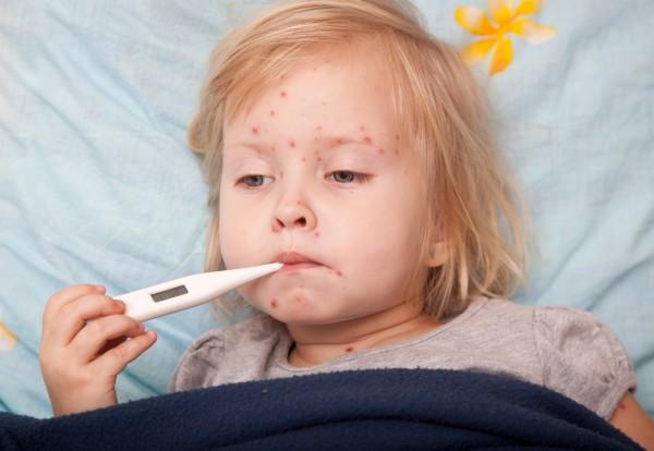 Как выглядит краснуха: симптомы заболевания и лечение