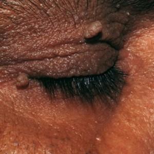 Папилломы человека: причины возникновения и лечение вируса