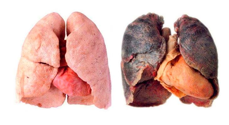 Легкие курильщика и здорового