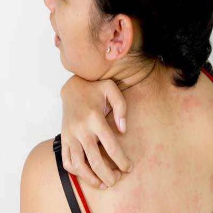 Розовый лишай у человека: симптомы и лечение