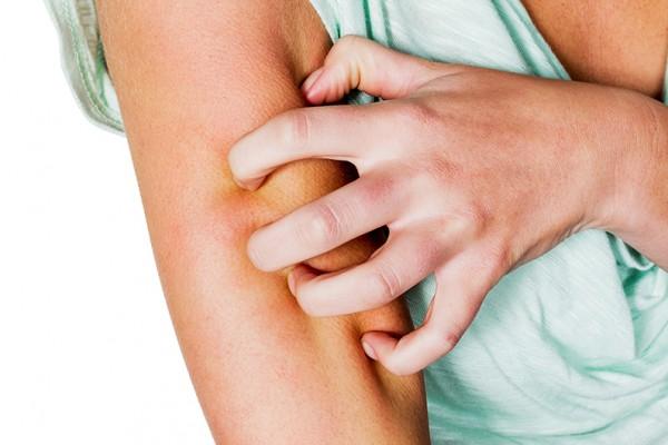 Мази против зуда кожи и аллегии